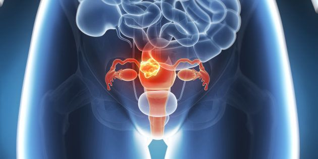 Apex Medical Body Questions India's First Uterus Transplant, Says Pune Hospital Didn't Take