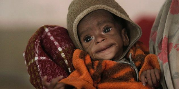 Four-month-old Vishakha, who weighs 2.3 kg (5 lbs) and suffers from severe malnutrition, is carried at...