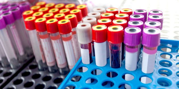 New Blood Test Can Now Detect Cancer And Locate Tumour At An Early