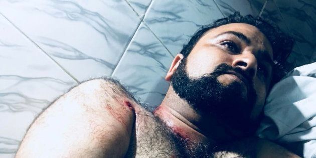 Police In Yogi Adityanath's UP Accused Of Delaying Surgery Of Dr Kafeel Khan's Brother After He Was Shot