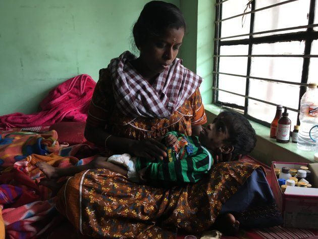 Minnie Suresh, who has breathing difficulties, nurses her two-year-old child. Health department workers...