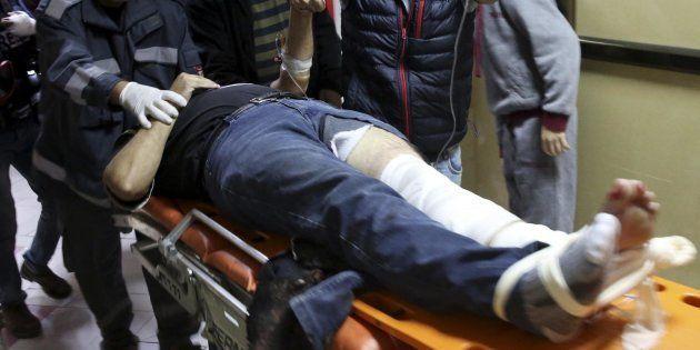 AP cameraman who shot in leg while covering Gaza
