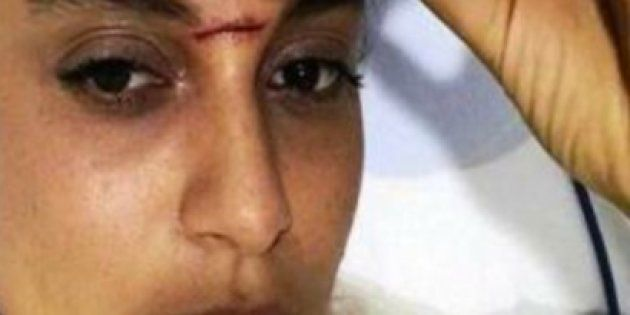 Kangana Ranaut Rushed To The Hospital After Suffering Head Injury On Sets Of Rani Laxmibai