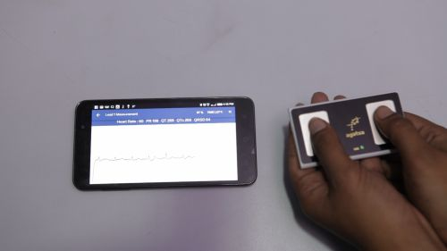 Anyone, Anywhere Can Now Get An ECG Report In 15