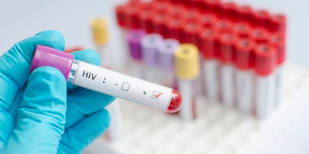"Treatment that would suppress HIV levels without the need for antiretroviral therapy would be considered a ""functional"" cure."