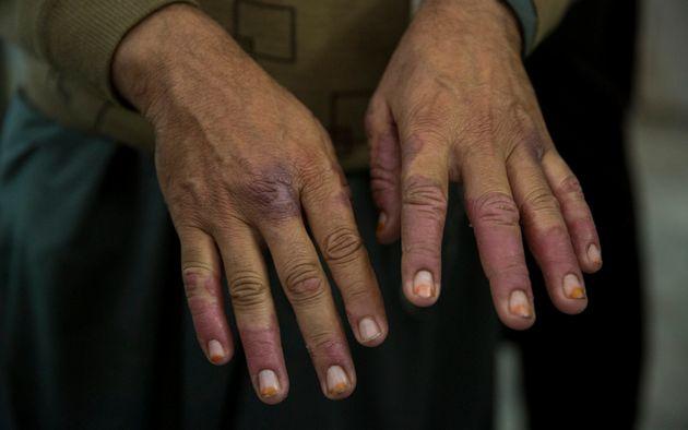 Γιατροί Χωρίς Σύνορα κατά Τραμπ: Οι μετανάστες στο Μεξικό κινδυνεύουν από τη
