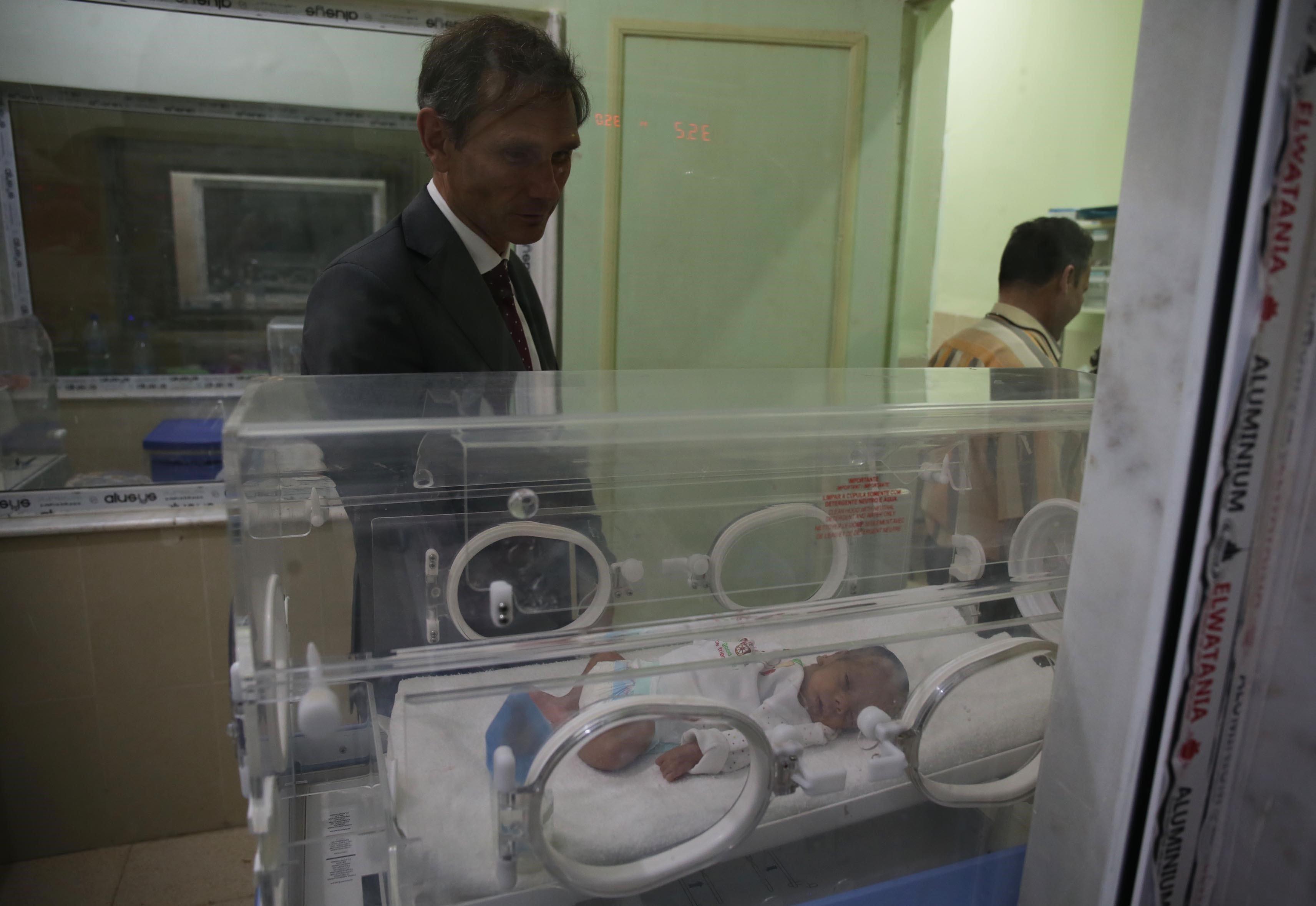 Deux frères siamois séparés avec succès à l'Hôpital d'El