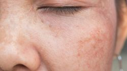 Acne Has Left Me Embarrassed Of My Own Bare
