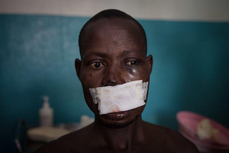 Ο Λέοναρντ, αγρότης 33 ετών, δέχεται ιατρική φροντίδα στο νοσοκομείο του Πάουα. Τον πυροβόλησαν στο κεφάλι ένοπλοι που ήθελαν να του κλέψουν τα βόδια. Την προηγούμενη μέρα είχε φύγει από το Μπετόκο μαζί με συγγενείς, όταν η πόλη δέχτηκε επίθεση από ομάδα ενόπλων. (Δεκέμβριος 2018)