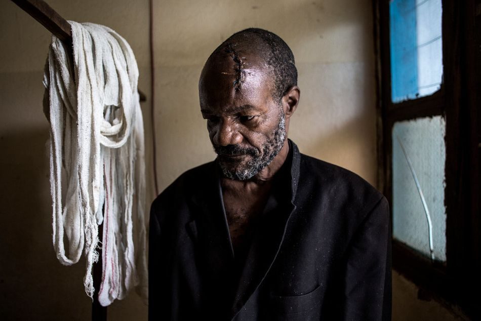 Ο Μπαουμά Γιοαμέ, 56 ετών, αναρρώνει σε θάλαμο νοσοκομείου στο Μπούνια. Τραυματίστηκε σοβαρά με πολλαπλά κοψίματα στο κεφάλι όταν το χωριό του δέχτηκε επίθεση. (Μάρτιος 2018)