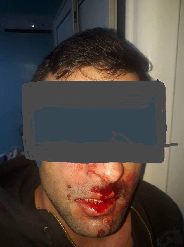 Un médecin violemment agressé aux urgences de Ben Arous le soir du nouvel