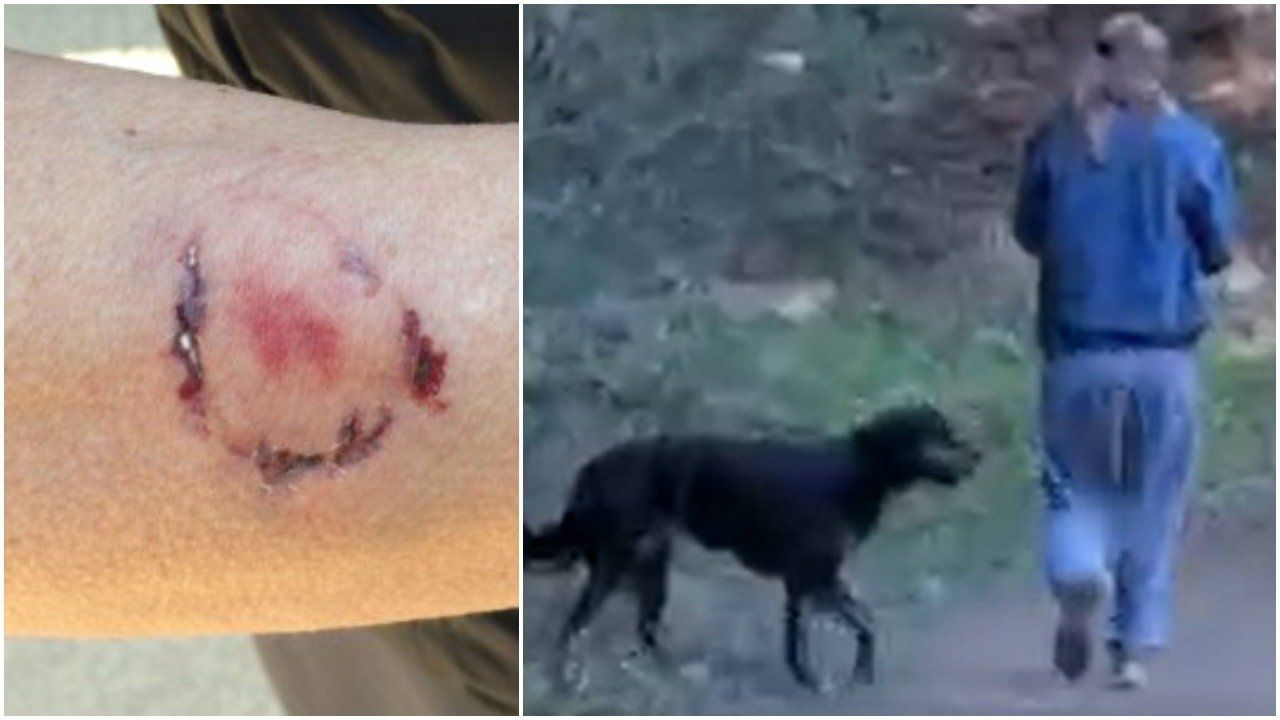 Police Say California Jogger Attacked By Dog, Bitten By Owner