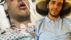 Ele voltou à vida após perder 45% do cérebro em acidente e ficar 2 meses em