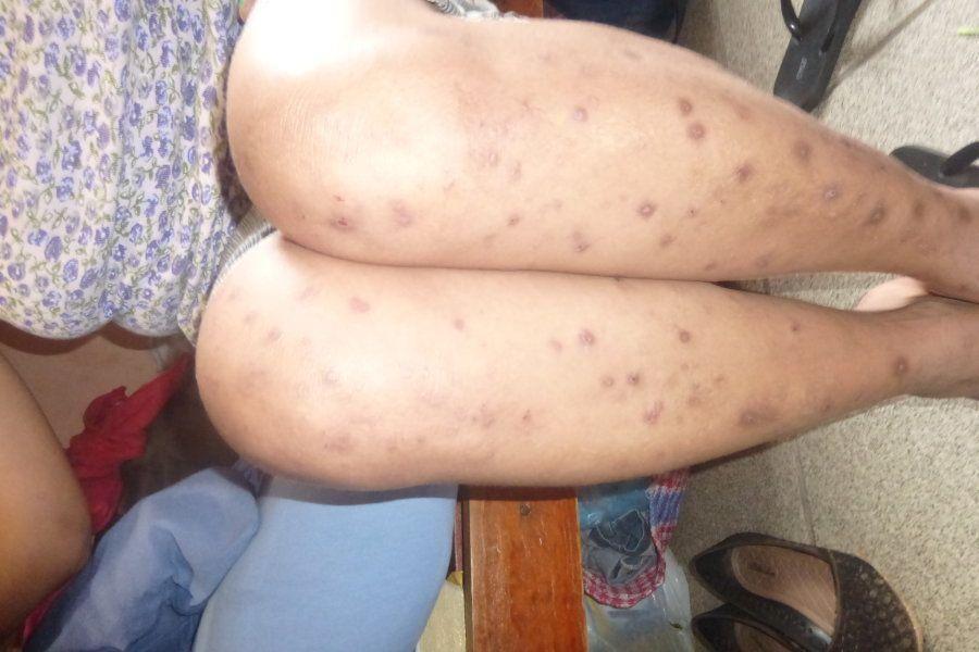 Fiscais identificaram diversas picadas de baratas em mulheres em presídios
