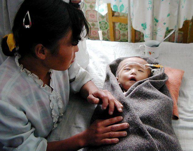 Um bebê norte-coreano desnutrido recebe atendimento em um hospital da província South Pyongan em setembro...