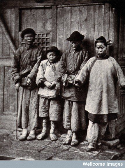Four people with leprosy, wearing thick clothing, standing outside a wooden hut in Foochow, South East China. Credit: Wellcom