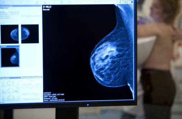 Para além do 'Outubro Rosa': 6 coisas que TODA mulher precisa saber sobre câncer de