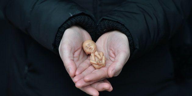 Aborto é crime no Brasil, a não ser quando há risco de morte para a gestante, quando a gravidez resulta...