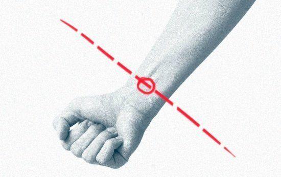 Apesar de ser mais comum na forma de pequenos cortes pelo corpo, a automutilação consiste em qualquer