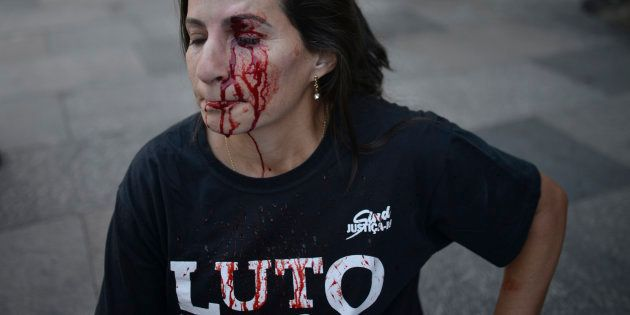 Servidora pública Valdinea Cavalcante foi ferida no olho em meio a protesto em frente à