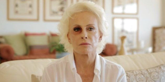 Ana Maria assusta fãs ao aparecer com olho roxo em campanha contra violência de