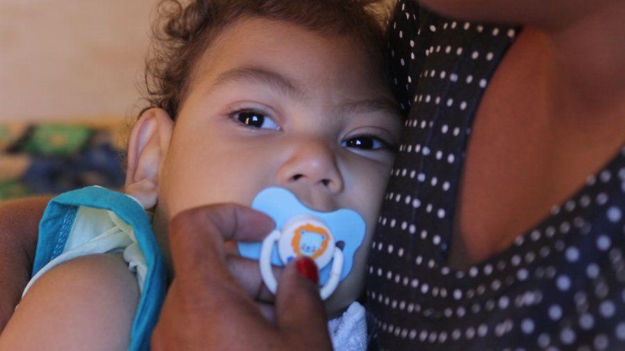 Gabriel, nascido em novembro de 2015 em Santana do Ipanema tem microcefalia causada pelo zika na gravidez...