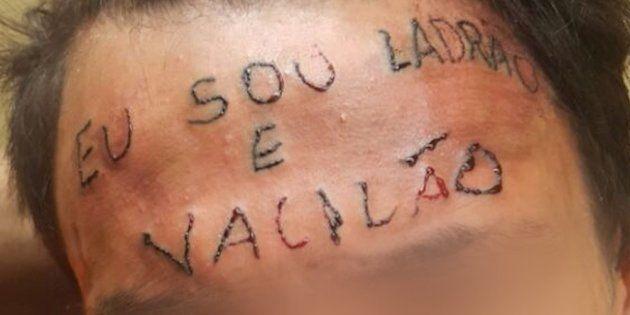 """Adolescente de 17 anos tem a testa tatuada com a frase """"eu sou ladrão e"""