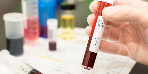 Há pelo menos 830 mil pessoas em tratamento de aids no Brasil, de acordo com o relatório da
