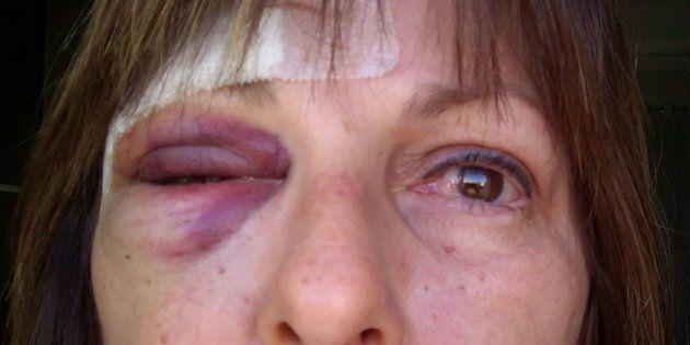 Professora agredida pede que o Brasil 'olhe' para