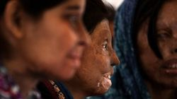 Acid Attack Survivors March To Condemn Attack On Woman