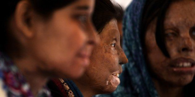 Indian acid attack survivors looks on as they mark the beginning of a hunger strike in New Delhi on December...