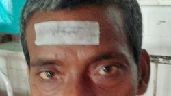 This Hospital In Bihar Pasted Stickers That Read 'Bhukamp' (Earthquake) On Forehead Of The