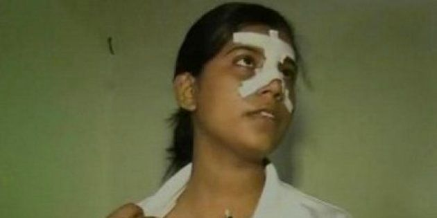 Kabaddi Player Dolly Singh Beaten Up In Kanpur For Resisting