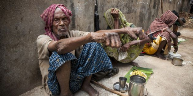 A man with leprosy waiting for food