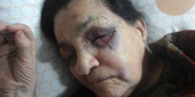 Four Days After IAS Officer's Car Knocked Down 90-Year-Old Indian War Veteran, No Arrests