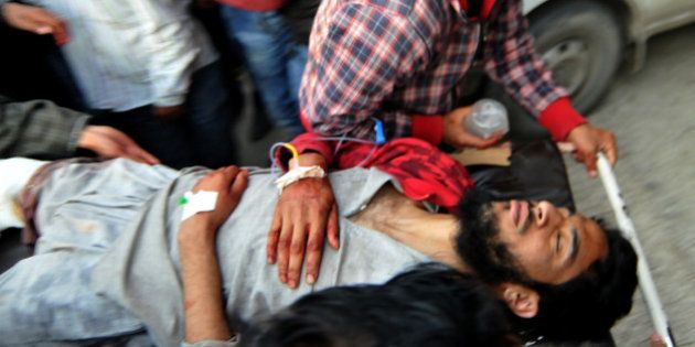A Kashmiri youth is stretchered into a hospital in Srinagar on April 15, 2016, after sustaining injury...