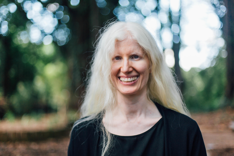 Andreza Aguida, a albina que faz de sua autoimagem uma forma de