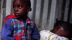 Fotos emocionantes mostram de perto o Ebola visto pelas redes