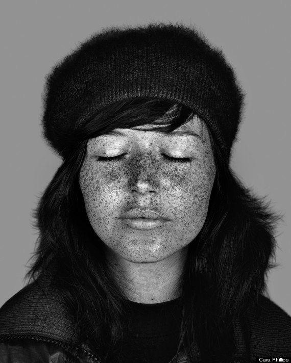 Os efeitos chocantes que o sol provoca na pele
