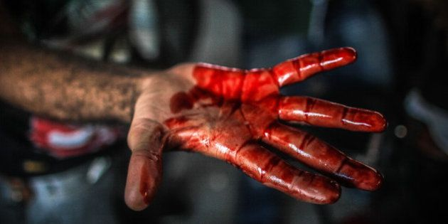 [UNVERIFIED CONTENT] A bloodied hand is displayed during the violent clashes at Ramses square between...