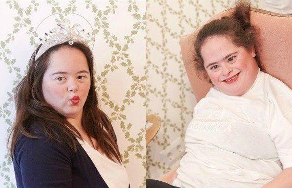 Um dia mágico para meninas muito mais que especiais: Dia Internacional da Síndrome de