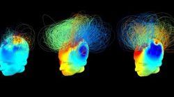 Pacientes vegetativos podem ter mais consciência do mundo ao redor do que