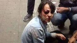 Antes tarde do que nunca: Justiça de SP proíbe uso de balas de borracha em