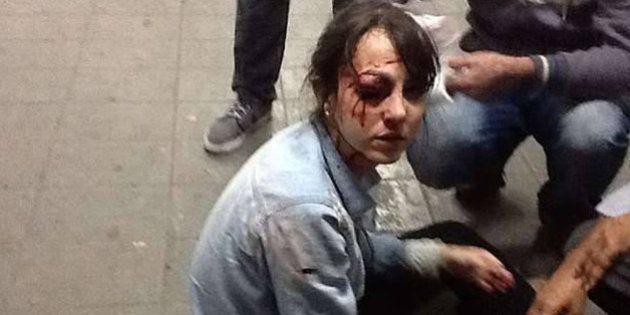 Justiça de SP proíbe uso de balas de borracha em