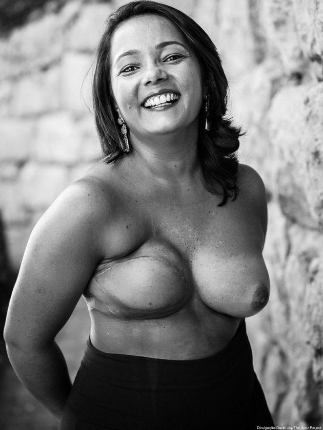 Ela tinha apenas 10% de chance contra o câncer de mama e conseguiu dar a volta por