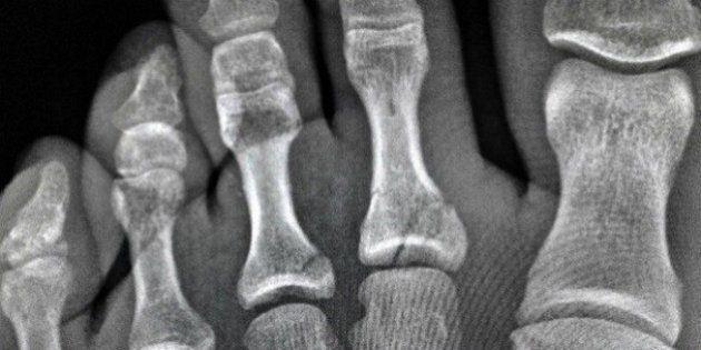 Rival de Gabriel Medina fratura dois dedos do pé mas garante que disputará etapa final do Mundial de