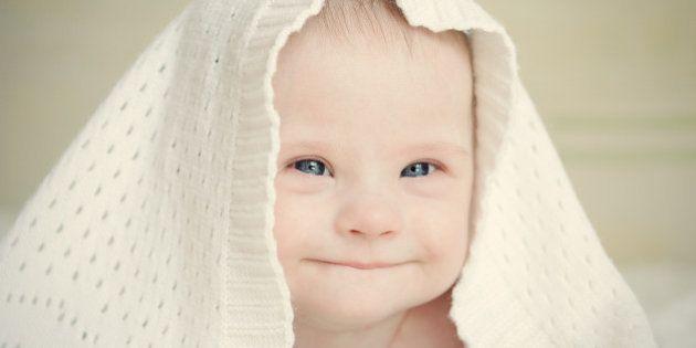 Cientista britânico Richard Dawkins diz que bebês com síndrome de Down deveriam ser