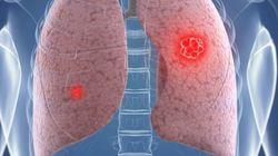 Cuba tem uma vacina de câncer de pulmão -- e os Estados Unidos