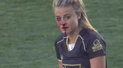 Jogadora de rugby continua em campo com nariz quebrado e vira 'Deusa da