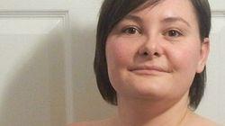 Por que esta mulher está mostrando as cicatrizes de sua mastectomia